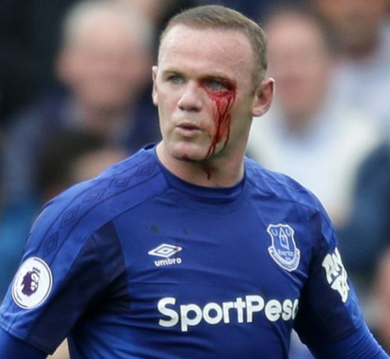 Wayne Rooney suffers nasty eye injury and forced to leave the field