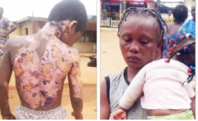 Nursing mother sets 10 year old brother-in-law ablaze in Lagos