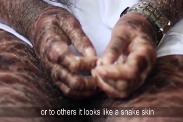 "Teenager cruelly dubbed ""snake lady"" due to rare skin condition which leaves her covered in scales (video)"