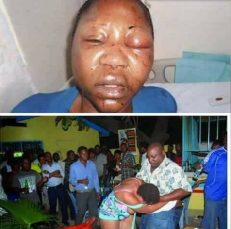 Husband allegedly beats his wife to a pulp after finding her in a beer parlour with another man
