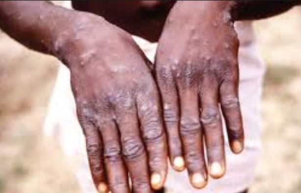 No recorded case of Monkey Pox in Ogun ? State Commissioner for Health shutdown claims?