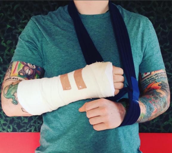 Ed Sheeran postpones world tour after Injuring both arms in a bike accident in London