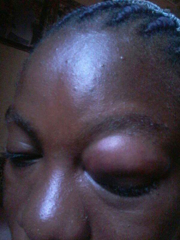 Photos: Woman left with swollen eye, after being allegedly battered in Edo State over donation made by Deputy Governor