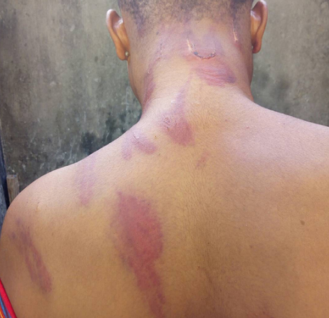Child Abuse: Young girl reportedly battered by her parents for not being indoors when they arrived home from work
