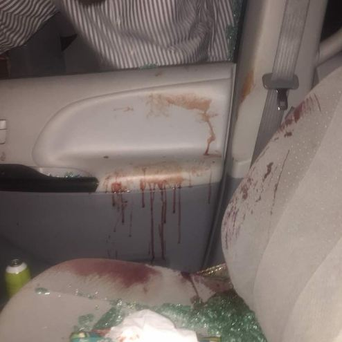 Lady narrates how police allegedly refused to assist her after she was stabbed in the stomach and robbed of her belonging while in traffic at Eko Bridge