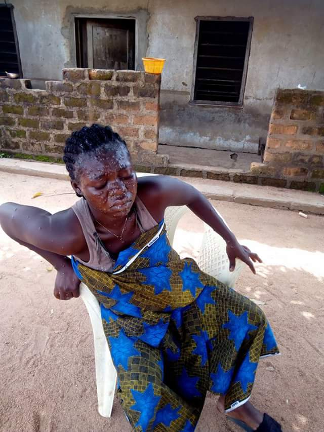 A suspected case of Monkey Pox recorded in Gboko, Benue State (photo)