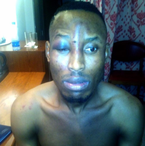 LIB Exclusive: Mr. 2Kay slams Eko Hotel with N500 Million Naira lawsuit for getting robbed and beaten in their premises