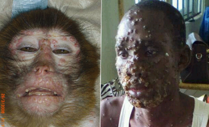 38 cases of monkey pox confirmed in eight states and the FCT