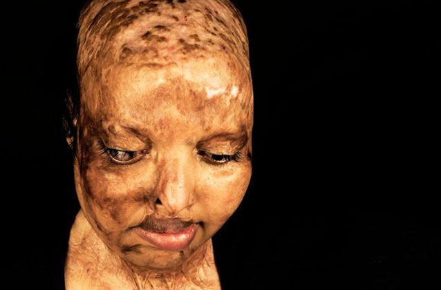Indian woman blinded and badly burnt in acid attack finds love in hospital