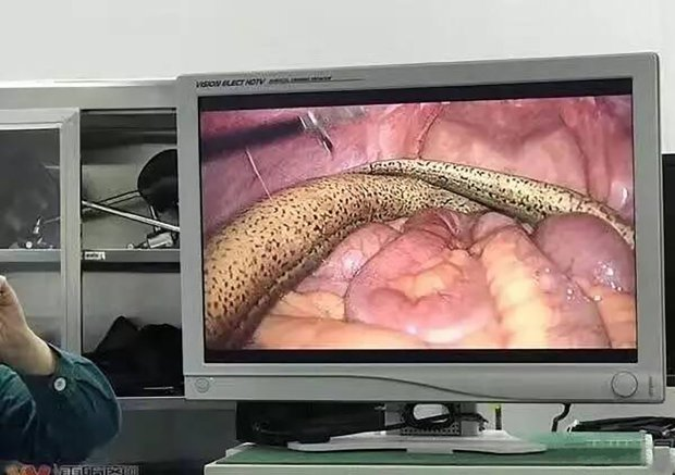 Eww! Drunk man gets eel stuck up his anus but refuses to tell doctors how it got there  (video/photos)