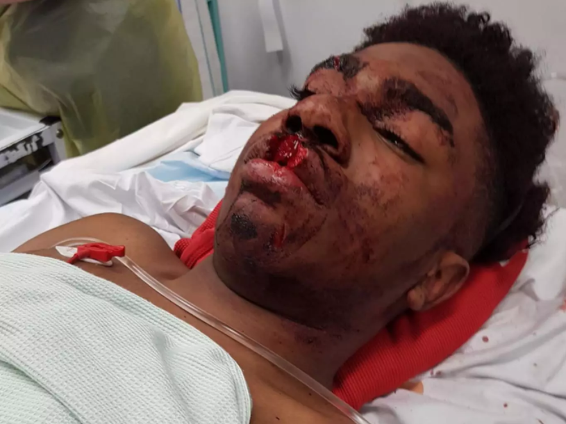 UK Police under investigation after 15-year-old Black boy suffers horrific injuries while being detained by officers