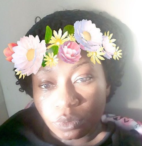 Nigerian female medical doctor narrates how she became conscious during surgery due to anesthetic failure and what happened afterwards