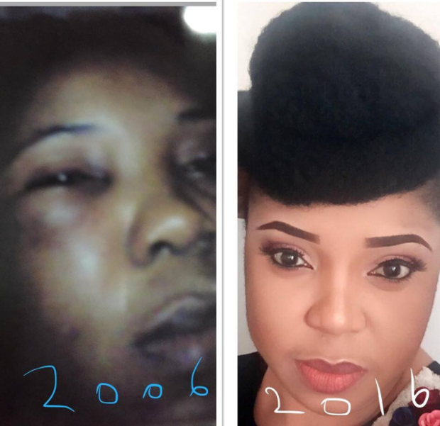 """""""It took 10 years for me to heal"""": Nigerian domestic violence victim shares photos of her transformation years after being battered"""