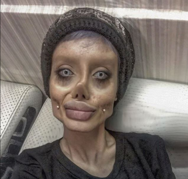 Girl, 19, undergoes 50 surgeries to look like Angelina Jolie but it