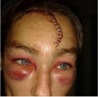Woman?s head opened in racist attack by three Asian men as she walked home (photos)