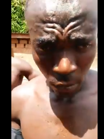 Man who uses fake wound to beg for money busted in Enugu (photos/videos)