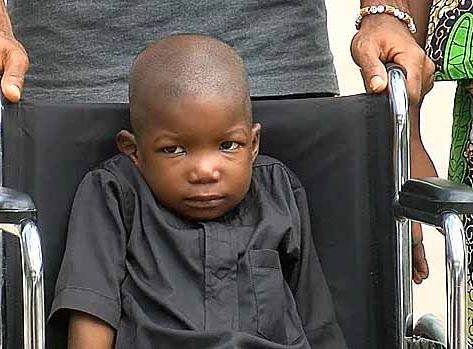Six year-old Boko Haram victim returns to Nigeria after successful surgery on Dubai