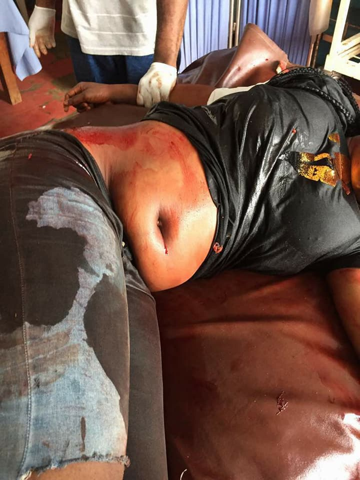 Graphic: Delta police officer allegedly shoot 18 year old lady over N1000 bribe, destroy evidence