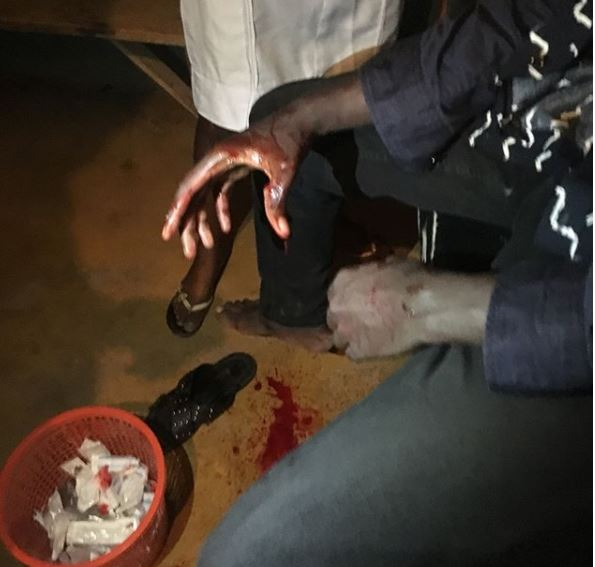 Photos: Instagram comedian, Ogbeni Adan narrowly escapes death after getting?stabbed by hoodlums