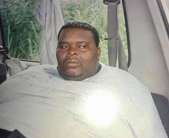 Wow! Checkout these weight loss photos of this Nigerian man