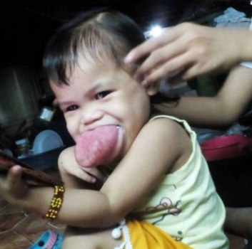 Parents call for help as their daughter,2, is being slowly suffocated by her massive tongue and faces life or death battle over Christmas