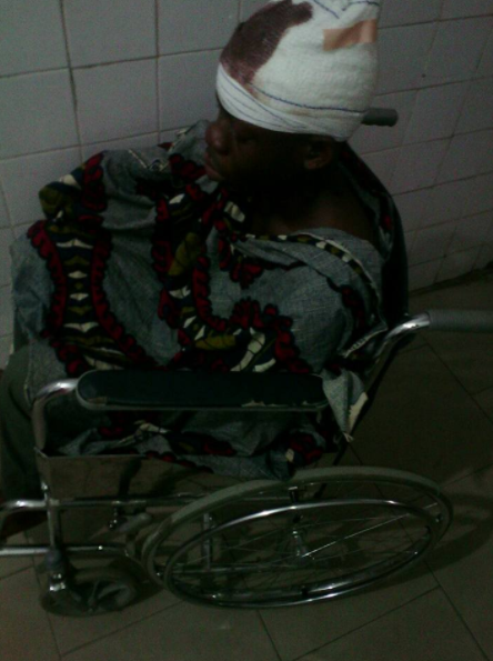 Man shares graphic photos as she recalls how a drunk policeman brutalized him a year ago