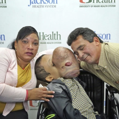 Doctors to remove 10-pound-tumor from boy?s face