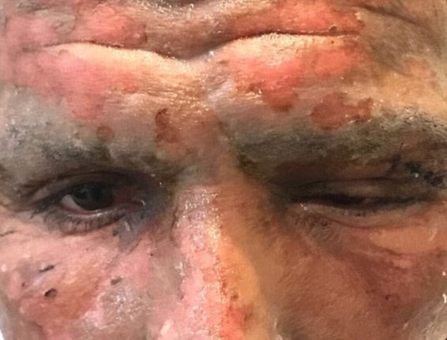 Ex-Argentina striker Viatri left with horrific wounds after firework exploded in his face on Christmas day (Photos)