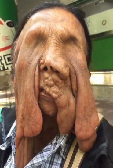 Grandmother with melting face that made her go blind refuses surgery as she fears dying on operating table