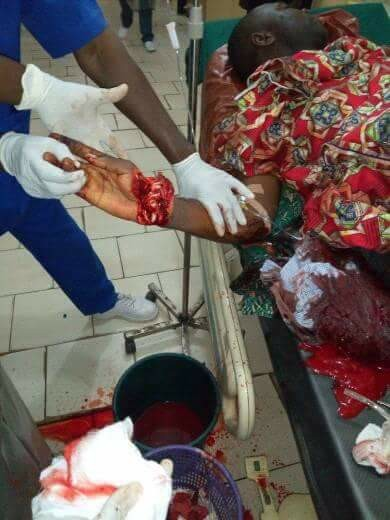 Suspected Fulani herdsmen attack Catholic catechist in Abuja, almost chopped off his hand (graphic photos)