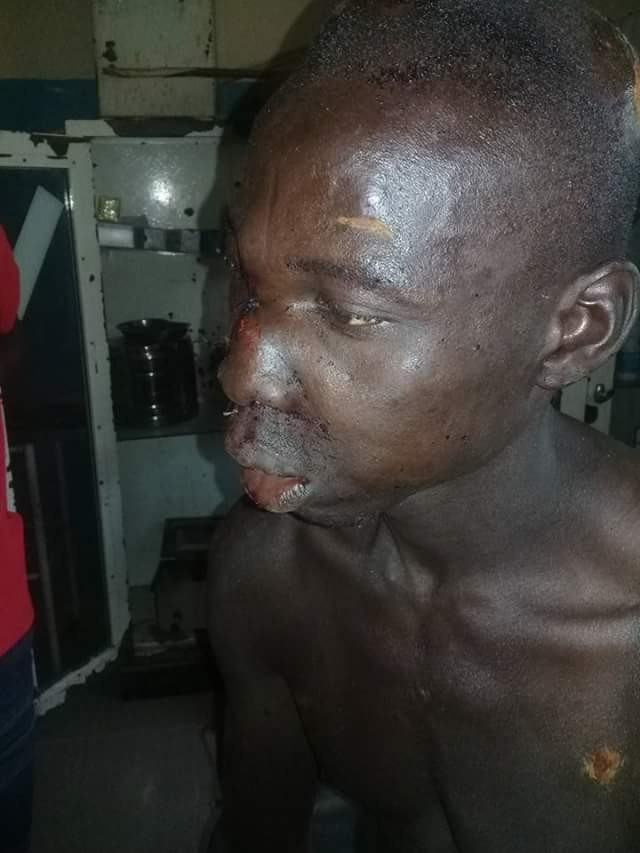 Photos: Two youths attacked by Fulanis in Adamawa State