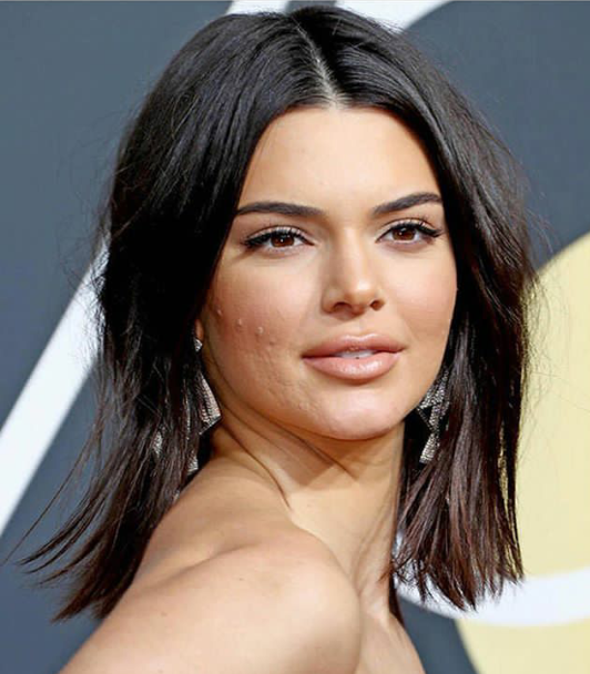 People are going crazy over this recent photo of Kendall Jenner with acne all over her cheeks