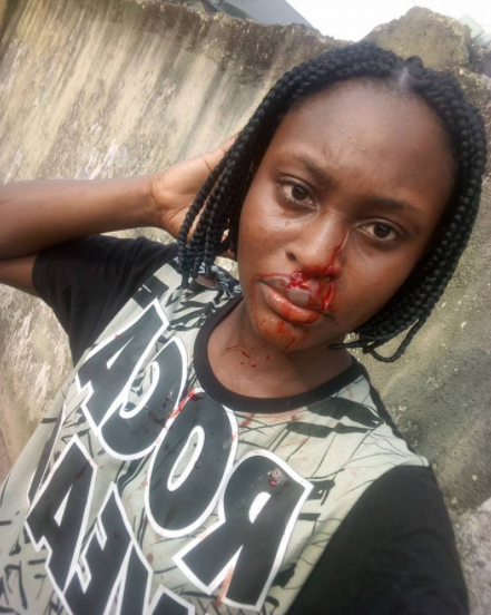 300 level UNIPORT student slashes her roommate