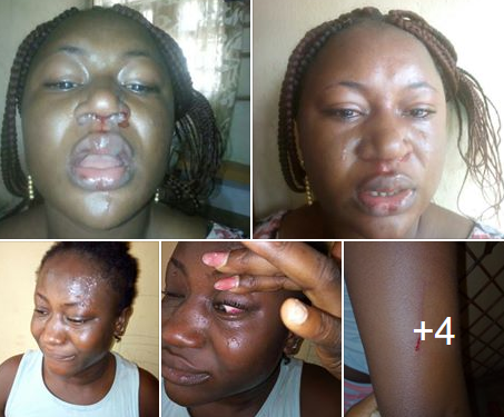 Nigerian woman battered by her husband cries out for help (photos)