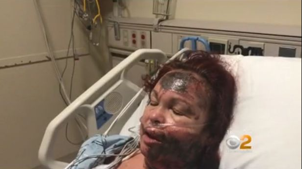 Woman who claimed she was attacked with acid sensationally changes story to admit she inflicted the horrific injuries on herself