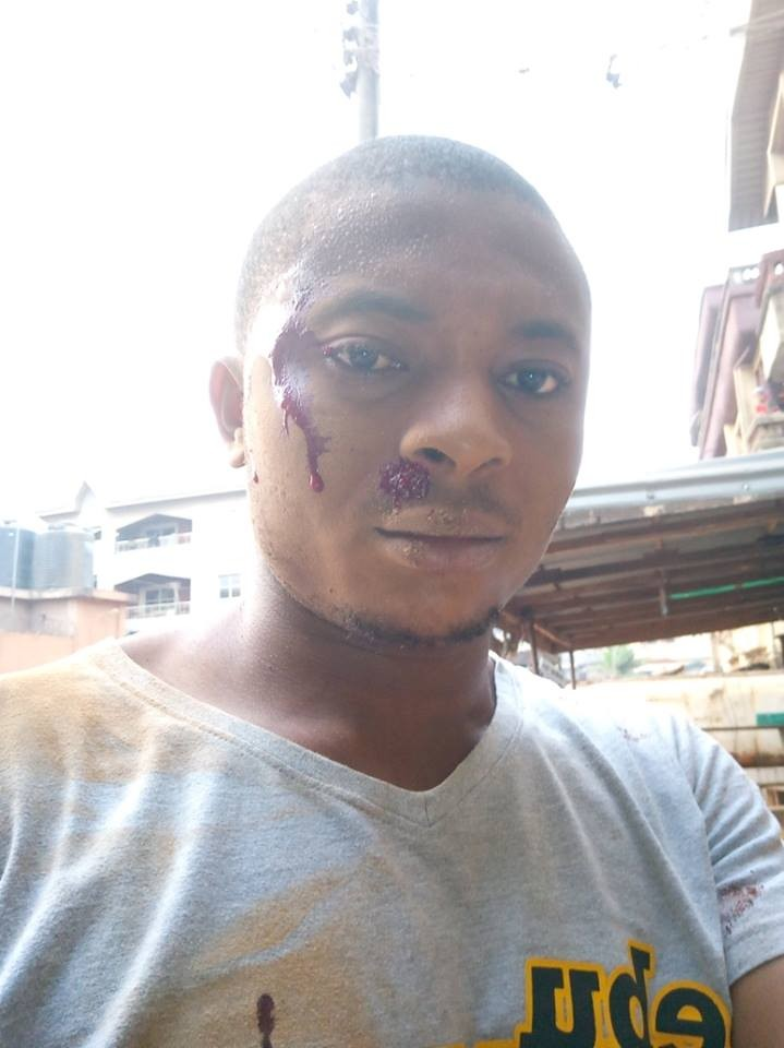 Nigerian lady celebrates her boyfriend who survived?a ghastly accident in Onitsha this morning (Photos)