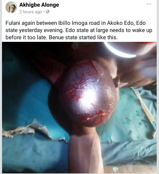 Photo: Man attacked by suspected Fulani herdsmen along Ibillo-Imoga road, Edo State
