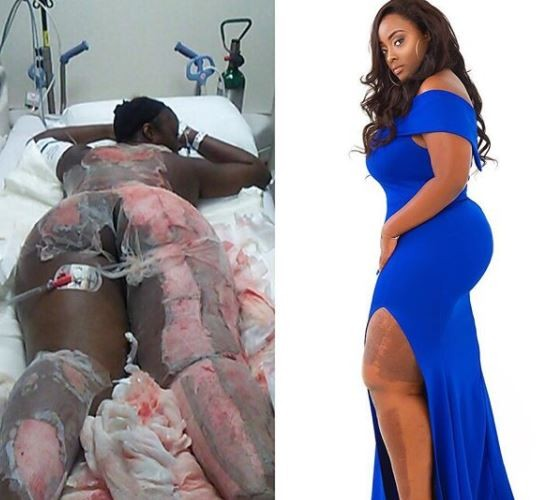Curvy Female Burn Survivor Shares Here Touching Story