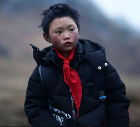 Charity gives boy with frozen hair just ?900 of ?56,000 raised for him