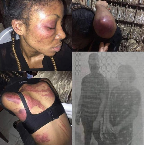 Oh dear! See what a couple did to their sister-in-law who stays with them in Lagos