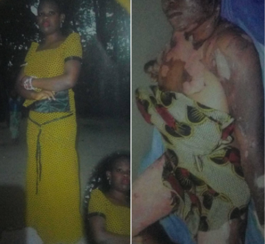 Burn victim dies after she was rejected by general hospitals in Lagos