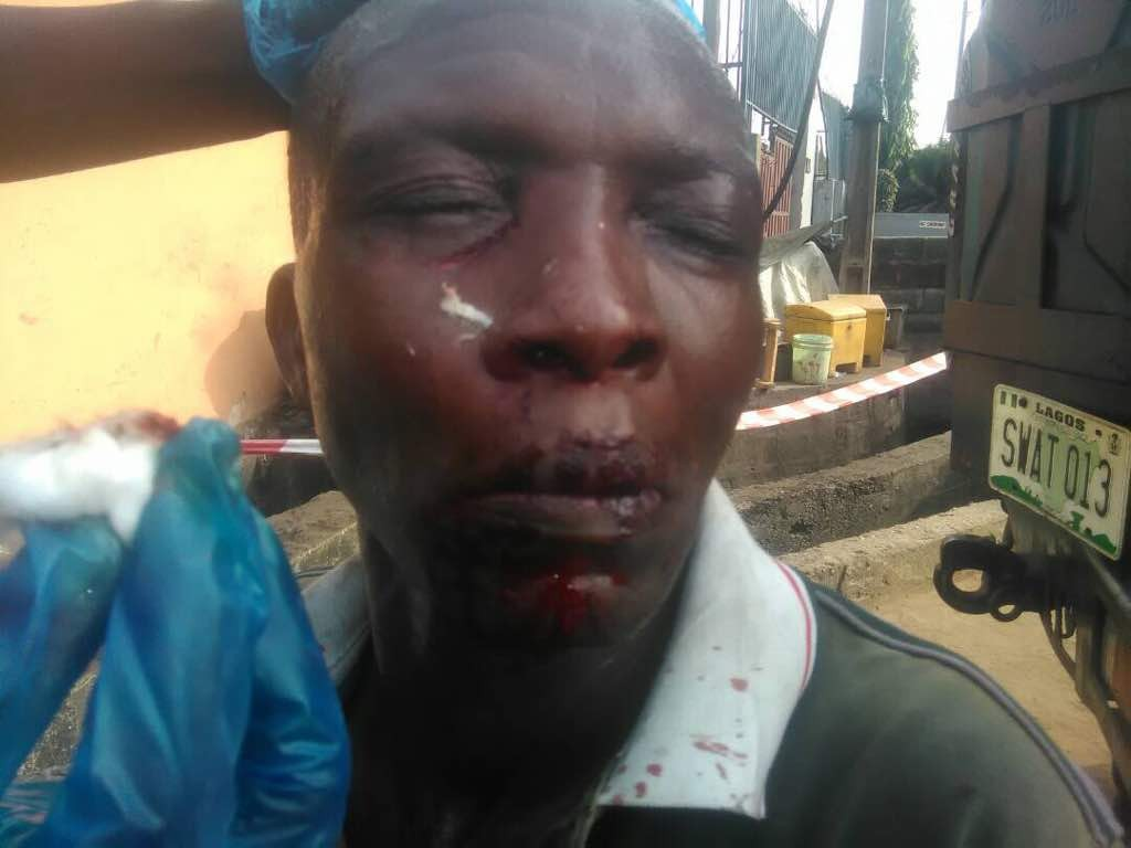 [See photos] Bus driver battered in Mushin by passengers over disagreement on bus fare.