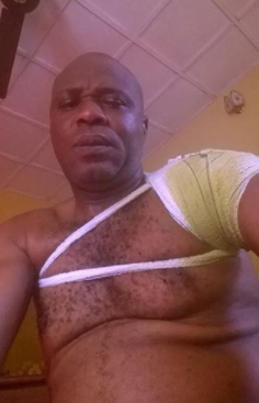 Nigerian father allegedly battered by his son over money cries out, shares photos of his bandaged arm