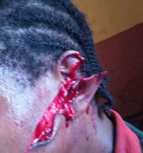 Fulani herdsmen attack a woman and her daughter on her farm in Edo state (graphic photos)