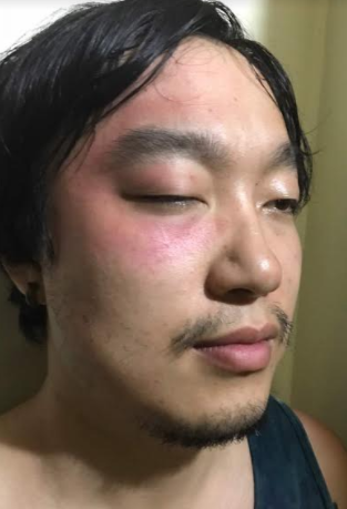 Chinese man allegedly detained and assaulted by Custom officers in Lagos (photos)
