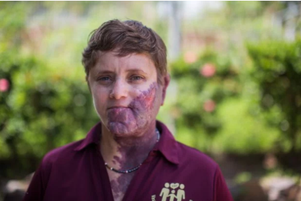 """Woman taunted and called """"purple people eater"""" because of her large purple birthmark (photos)"""