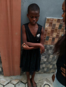 Graphic! Little girl left with rotten hands after she was brutalized by her madam in Lagos