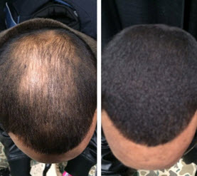 An open letter to every man who wants to cure baldness, reverse hair loss and re-grow hair in 14 days or less using a natural herbal solution!