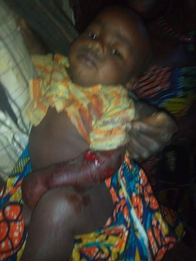 Photo: 9-month-old baby allegedly shot in the communal clash on Mambilla Plateau, Taraba State
