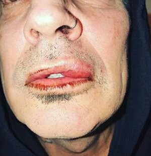 Tommy Lee accused his son of hitting him and his son replies saying his dad got drunk and he punched him in self-defense